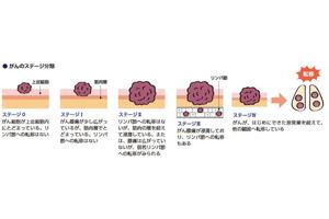 がん発生部位、形状による分類についてお話しますね