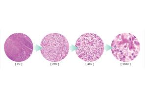 「がんの消去」を目指すエッセンシャル統合医療その3 がんとは